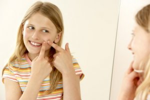 青春痘:選擇能防止痘痘惡化的產品