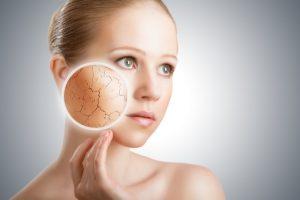 乾燥也是導致肌膚下垂的元凶之一